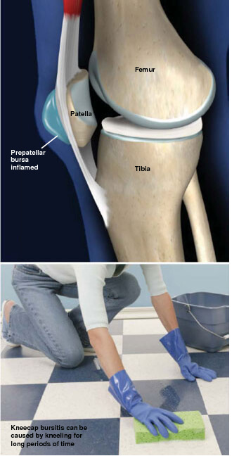 This condition is an inflammation of the sac that covers the front of the kneecap. prepatellar bursitis prescott az