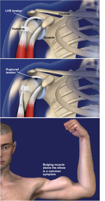 This condition is a tear of one of the tendons that anchor the biceps muscle to the shoulder. biceps tendon rupture prescott az