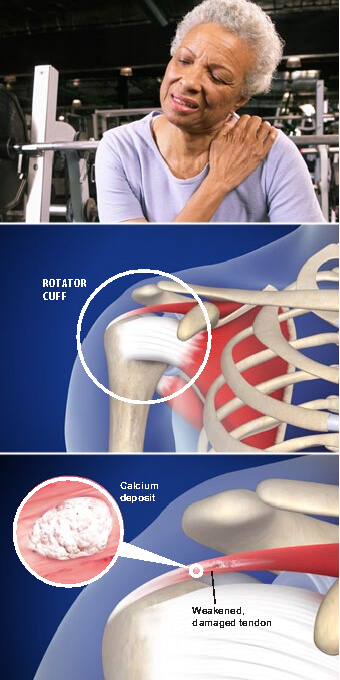 This painful condition occurs when calcium deposits form in tendons of the rotator cuff. calcific  tendinitis of the shoulder prescott valley az