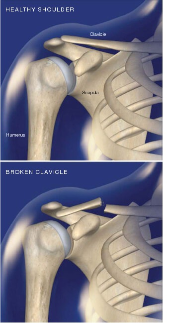 This condition occurs when a part of the clavicle, commonly called the collarbone, is fractured. clavicle fracture in prescott az