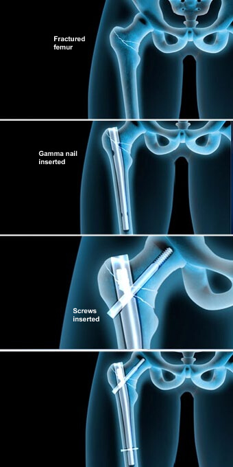 This procedure stabilizes severe fractures of the femur with a metal rod and screws implanted into the center of the bone.femur fracture prescott az