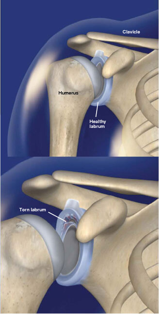 This injury is a tear of the labrum, a thick band of cartilage that lines the rim of the shoulder socket.Glenoid labrum tears prescott az