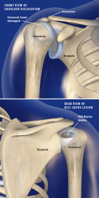 This condition is a traumatic fracture of the humeral head that leaves an indentation in the bone. hill-sachs lesion prescott az