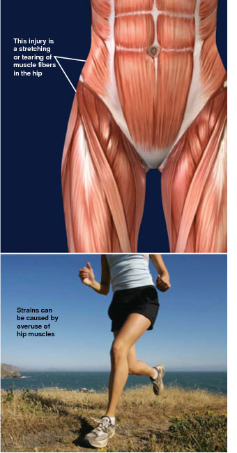 This injury is a stretching or tearing of fibers in one of the muscles at the hip joint. muscle strains of the hip prescott az